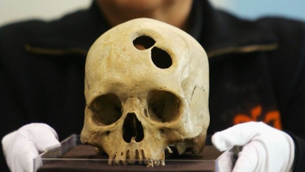 El cráneo perforado de una mujer inca