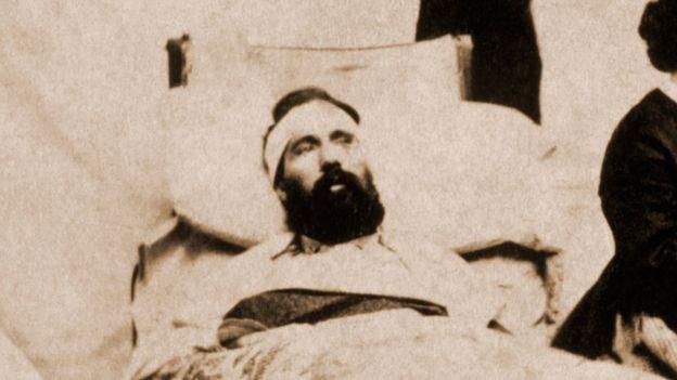 Un herido durante la Guerra Civil en EE.UU.